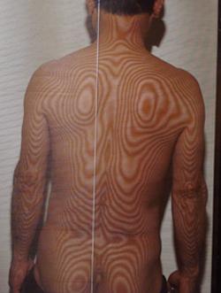 左椎間板ヘルニア(治療前)