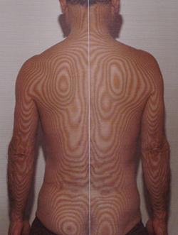 左椎間板ヘルニア(治療後)