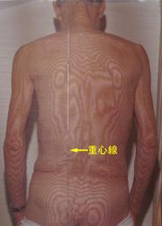 顔面けいれん|体全体の関節で負担のかかっている場所を調べます。