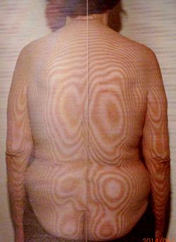 圧迫骨折のモアレ画像(治療後)