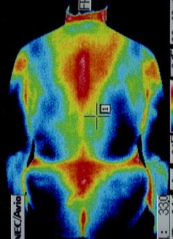圧迫骨折のサーモ画像(治療後)