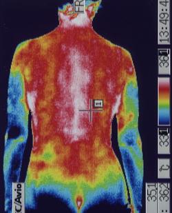 原因不明の腰痛の原因|筋力低下や背中の温度分布(治療前)