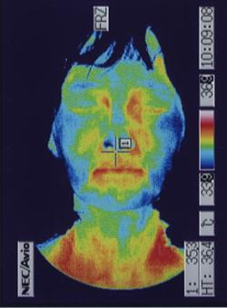 星状神経の緊張で血流が低下した顔(治療後)