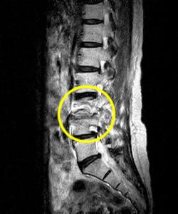 圧迫骨折後の腰痛の原因