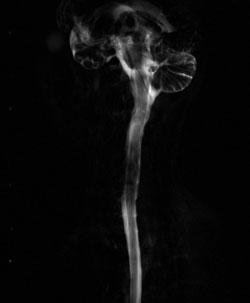 脳脊髄液減少症(MRI検査)