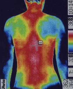 バレー・リュー症候群|筋肉の代謝異常を調べます。