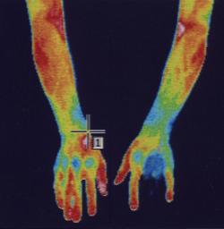 手のしびれ|筋肉の代謝異常を調べます。