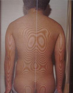 背中の痛み(モアレ画像)