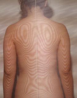 肩こり頭痛の原因|体の重心バランスの傾き(治療後)