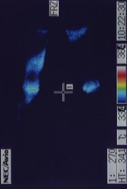 脳脊髄液減少症(治療前)