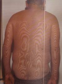 脊柱菅狭窄症の腰