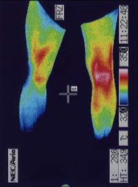 脊柱菅狭窄症の足