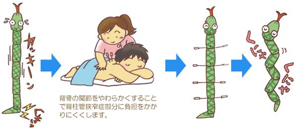 脊柱菅狭窄症を治す鍼治療