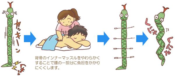 腰椎分離すべり症の鍼治療