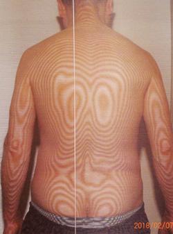 治らない寝違えの原因|体の重心バランスの傾き(治療前)