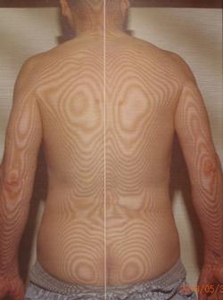 治らない寝違えの原因|体の重心バランスの傾き(治療後)