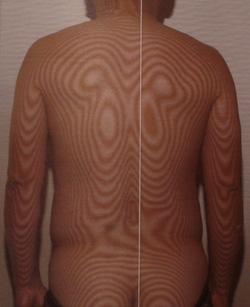 むち打ち症|体全体の関節で負担のかかっている場所を調べます。