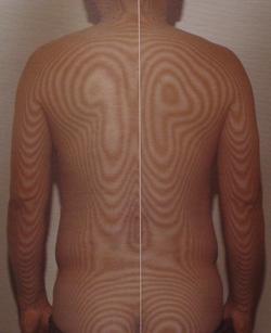 原因不明の腰痛の原因|体の重心バランスの傾き(治療後)