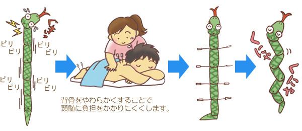 治らない寝違えの鍼治療