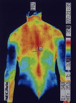 陰部神経痛 サーモ画像(胴)