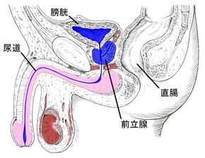 長野県 慢性前立腺炎の鍼治療